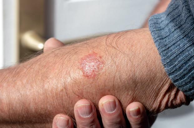 Bệnh chàm trên tay