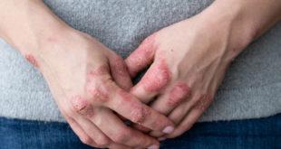 Bệnh vẩy nến ở tay
