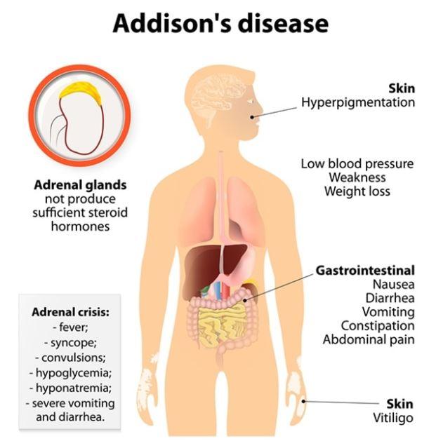 Các triệu chưungs của bệnh addison