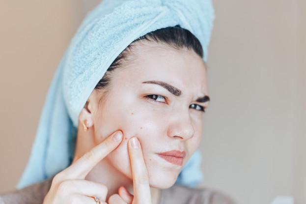 Cách chăm sóc da tại nhà khi bị mụn trứng cá