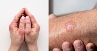 Cách phân biệt bệnh vảy nến và bệnh chàm