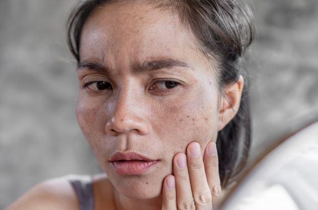 Nghệ và mật ong điều trị nám da