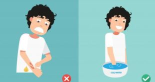 Đưa vùng bỏng vào vòi nước khoảng 10 đến 20 phút