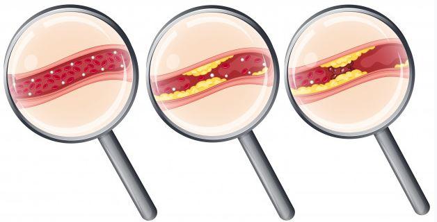Tinh bột nghệ làm giảm lượng Cholesterol trong máu