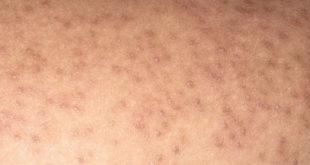 Hình ảnh bệnh dày sừng nang lông