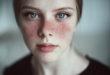 Hình ảnh bệnh Lupus ban đỏ