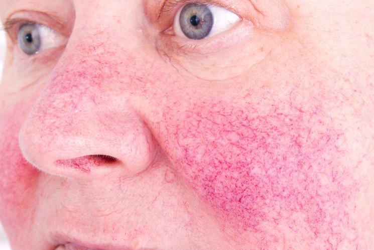 Hình ảnh bệnh hồng ban Rosacea