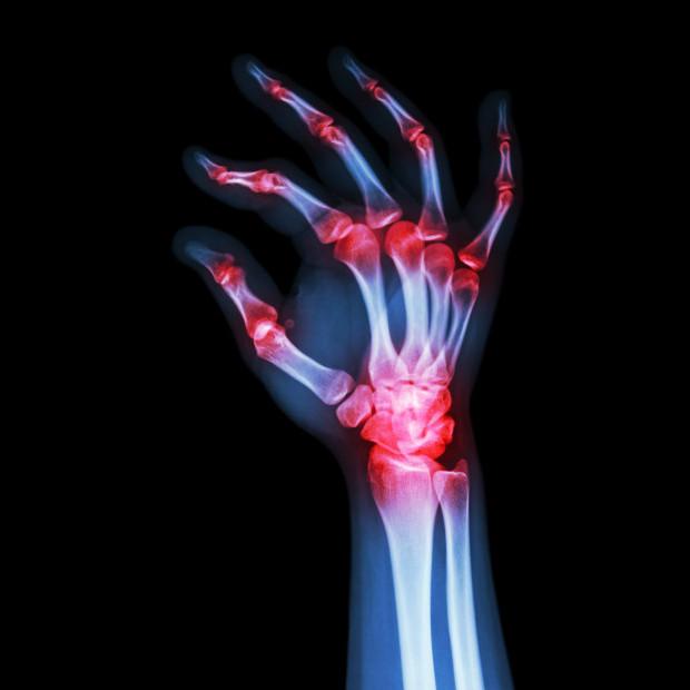 Hình ảnh viêm khớp dạng thấp ở tay