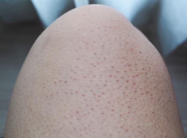 Nguyên nhân gây ra dày sừng nang lông