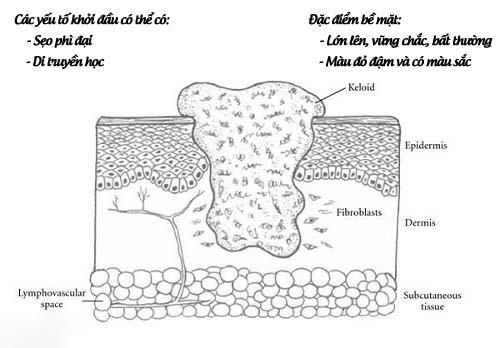Sẹo lồi là gì? Nguyên nhân và cách điều trị hiệu quả