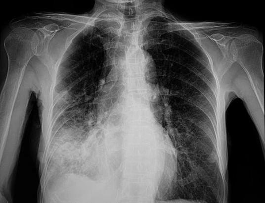 Sởi gây ra viêm phổi