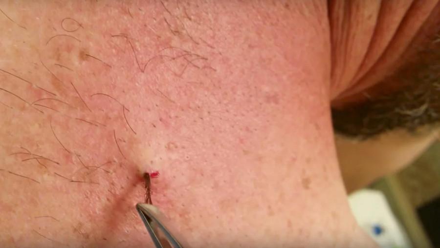Cách ngăn ngừa lông mọc ngược từ sẹo