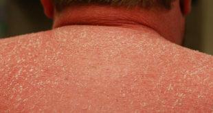 Hình ảnh bệnh vảy nến Erythodermic