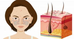 Hình ảnh minh họa bệnh vẩy nến mảng bám trên mặt