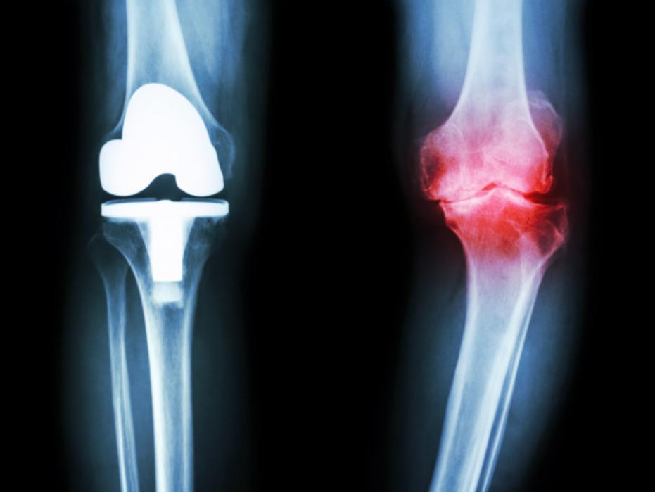 Các triệu chứng viêm xương khớp