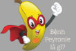 Bệnh Peyronie là gì?