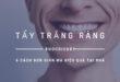 Cách tẩy trắng răng tại nhà an toàn hiệu quả