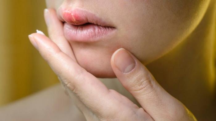 Bệnh Herpes ở môi