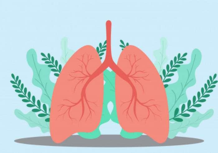 Các loại viêm phổi