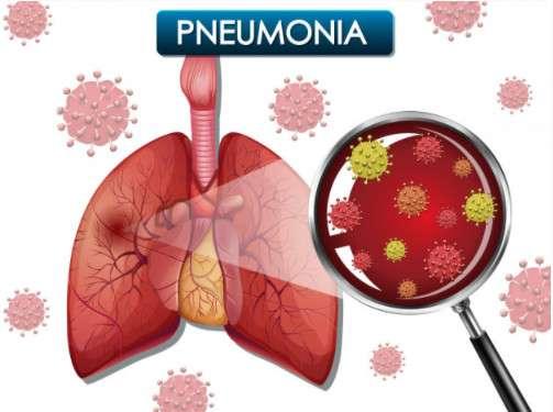 Nguyên nhân gây ra bệnh viêm phổi