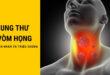 Ung thư vòm họng là gì? Nguyên nhân triệu chứng và cách phòng ngừa