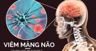 Viêm màng não: Nguyên nhân, triệu chứng và cách trị